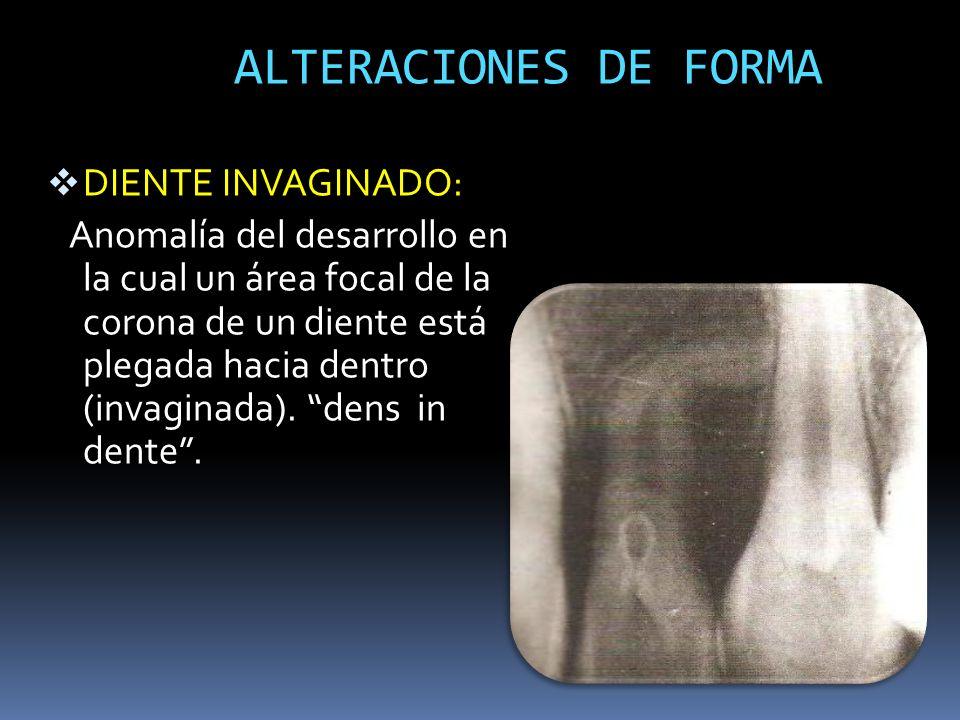 ALTERACIONES DE FORMA DIENTE INVAGINADO: