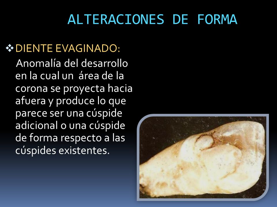 ALTERACIONES DE FORMA DIENTE EVAGINADO:
