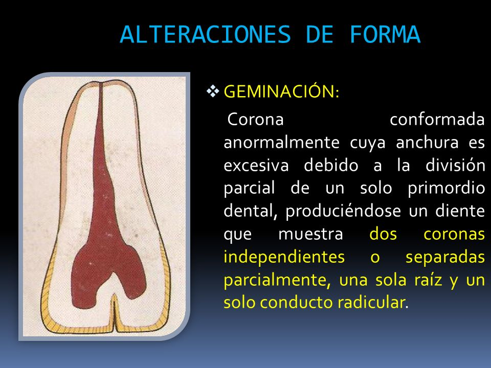 ALTERACIONES DE FORMA GEMINACIÓN: