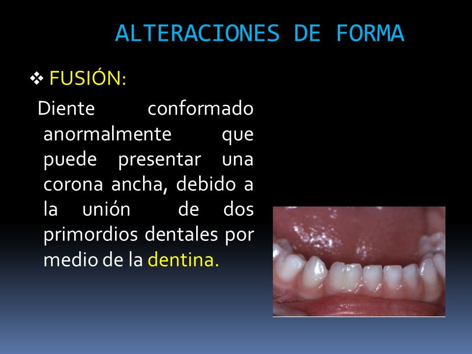 ALTERACIONES DE FORMA FUSIÓN: