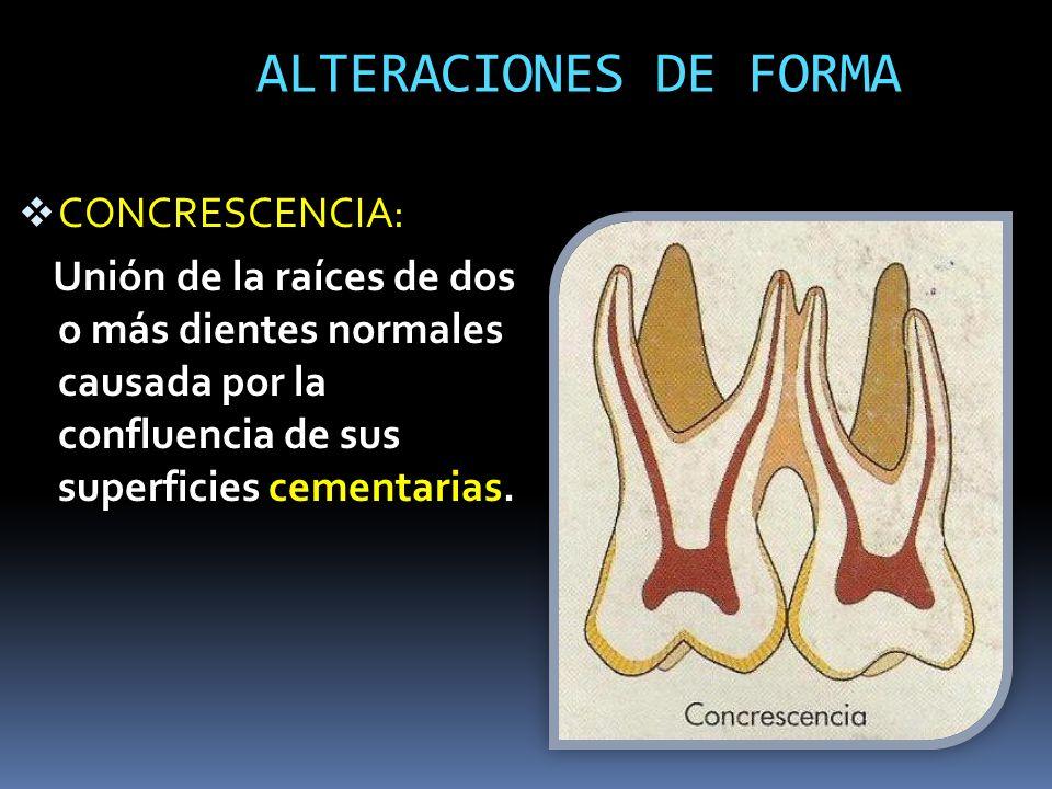 ALTERACIONES DE FORMA CONCRESCENCIA: