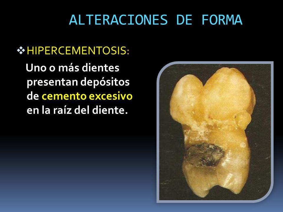 ALTERACIONES DE FORMA HIPERCEMENTOSIS: