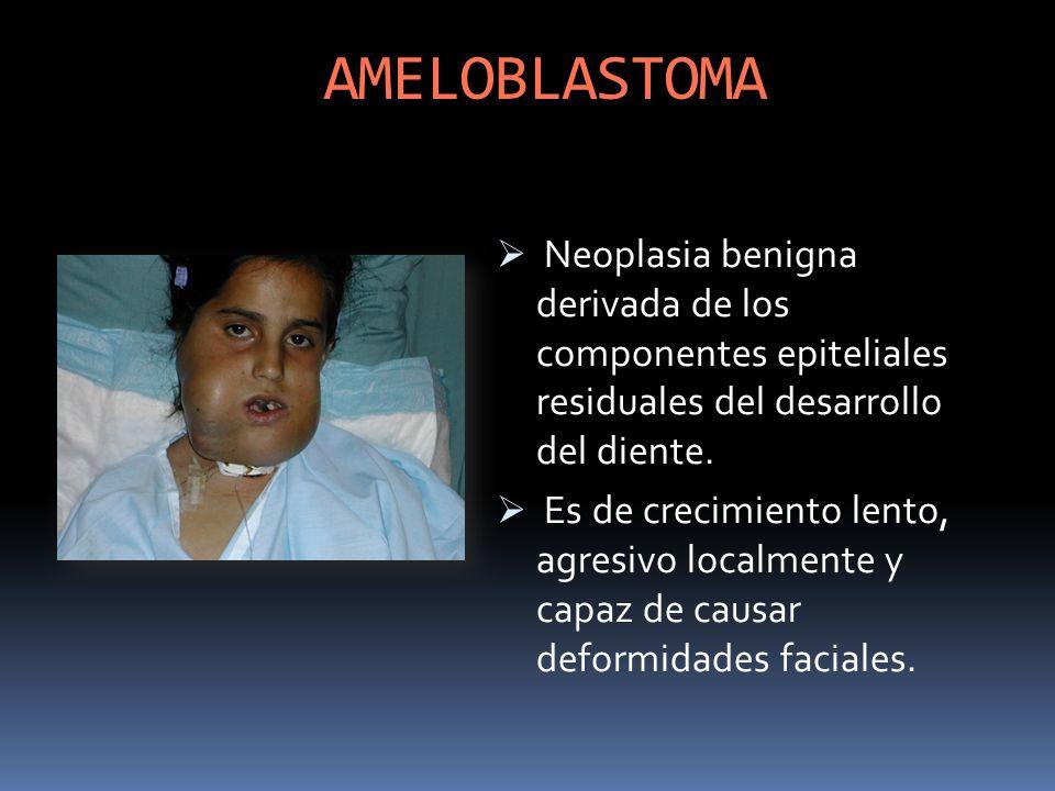 AMELOBLASTOMA Neoplasia benigna derivada de los componentes epiteliales residuales del desarrollo del diente.
