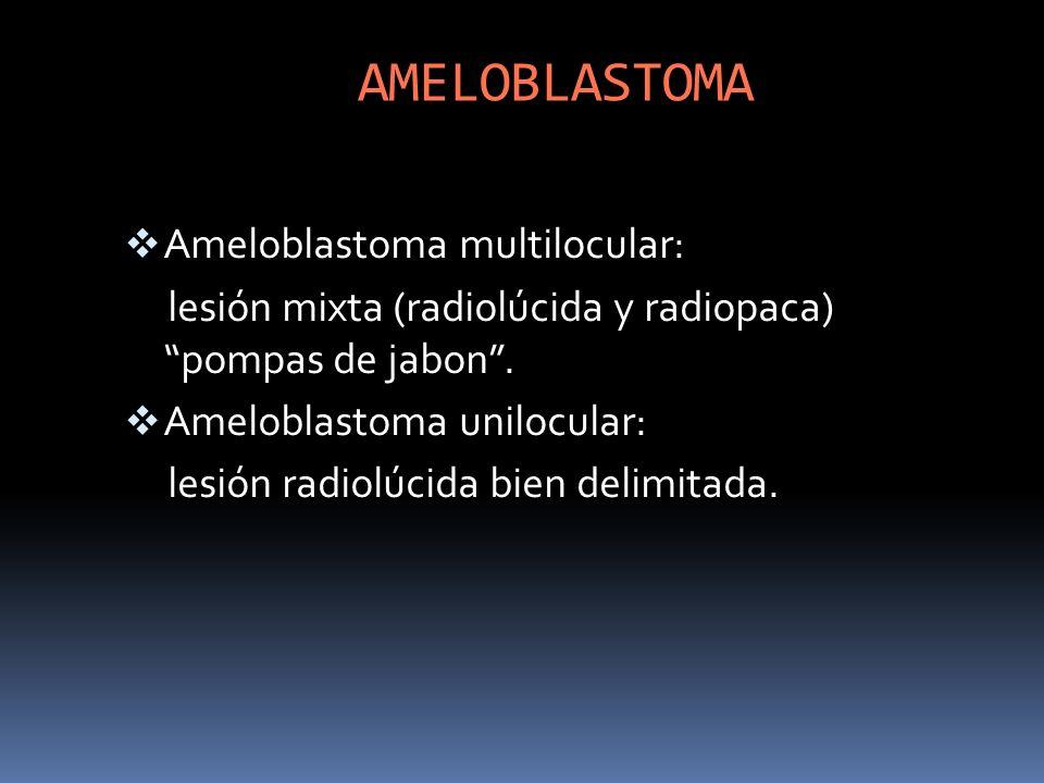 AMELOBLASTOMA Ameloblastoma multilocular: