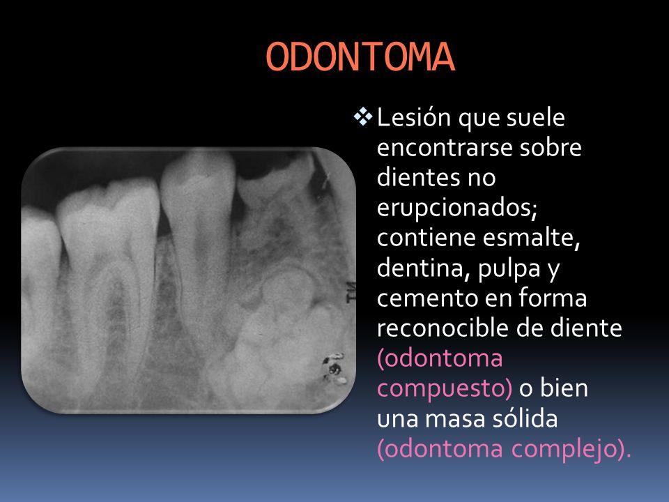 ODONTOMA