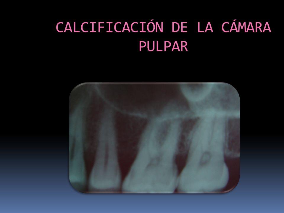 CALCIFICACIÓN DE LA CÁMARA PULPAR