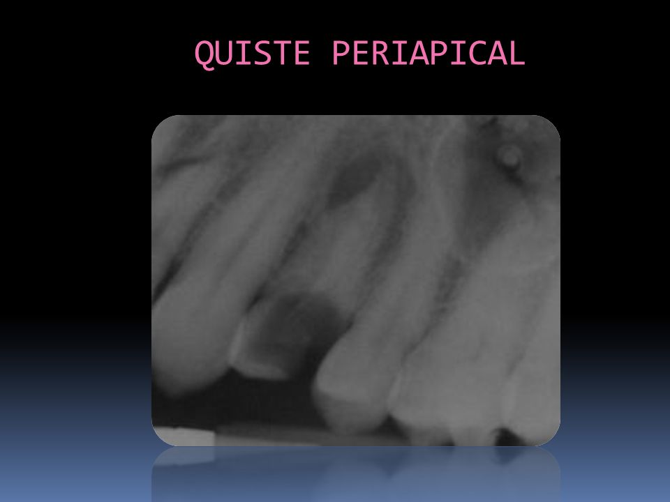 QUISTE PERIAPICAL