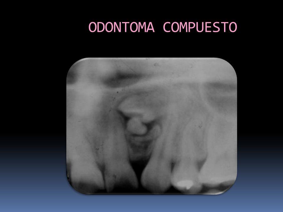 ODONTOMA COMPUESTO