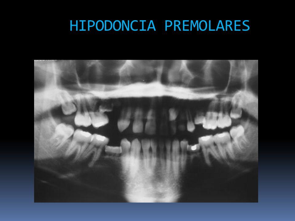 HIPODONCIA PREMOLARES