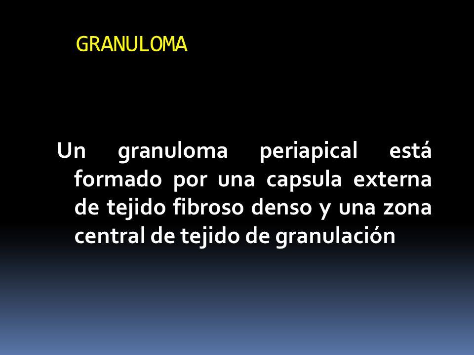 GRANULOMA Un granuloma periapical está formado por una capsula externa de tejido fibroso denso y una zona central de tejido de granulación.