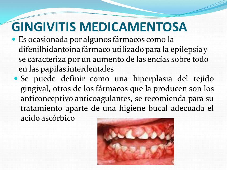 GINGIVITIS MEDICAMENTOSA