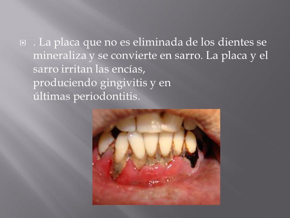 La placa que no es eliminada de los dientes se mineraliza y se convierte en sarro.