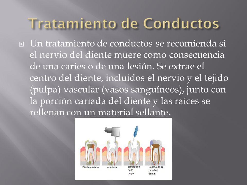 Tratamiento de Conductos