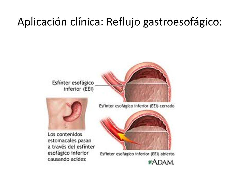 Aplicación clínica: Reflujo gastroesofágico: