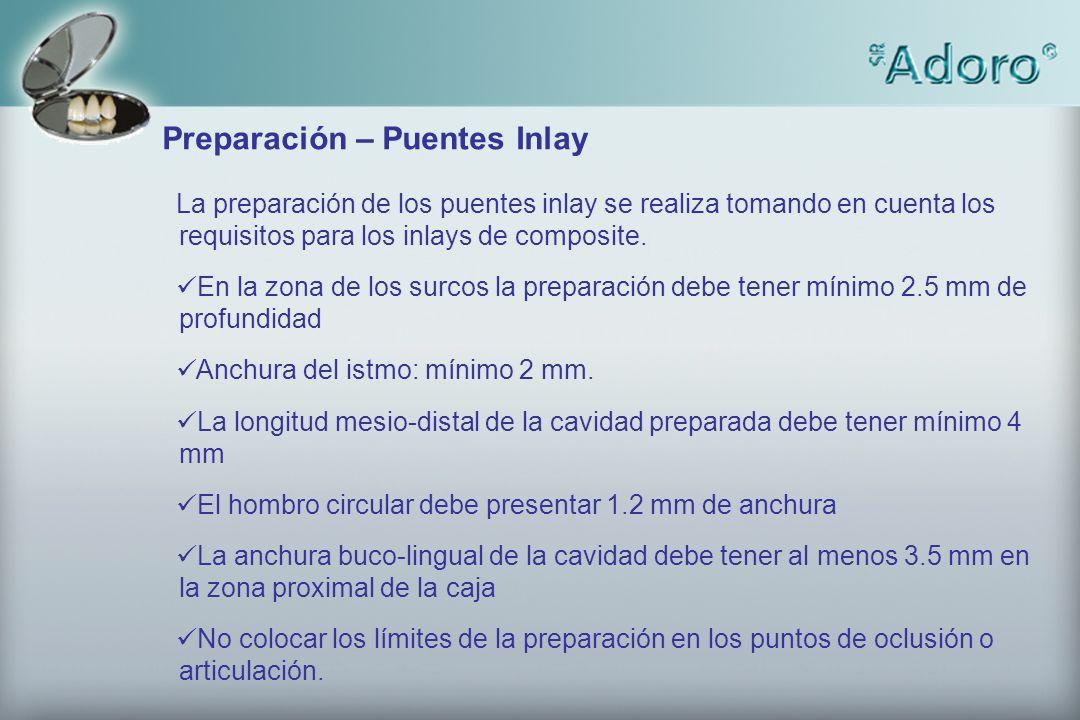 Preparación – Puentes Inlay