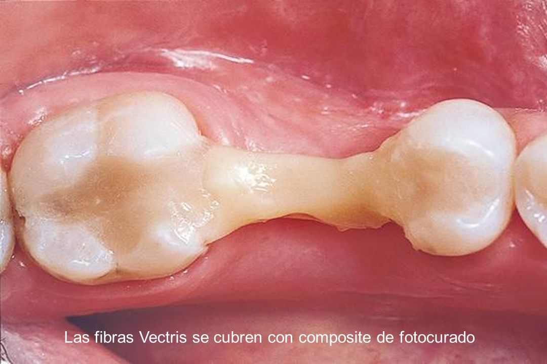The Vectris fibres are covered with light-curing composite