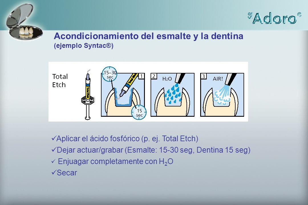 Acondicionamiento del esmalte y la dentina