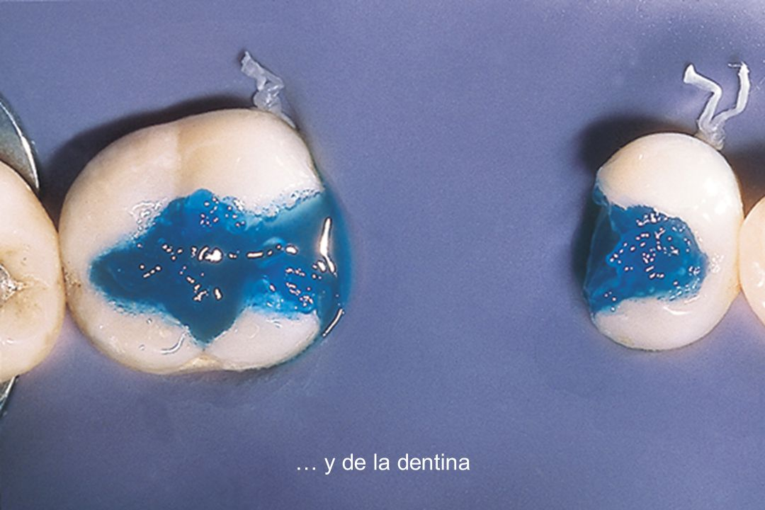 … y de la dentina