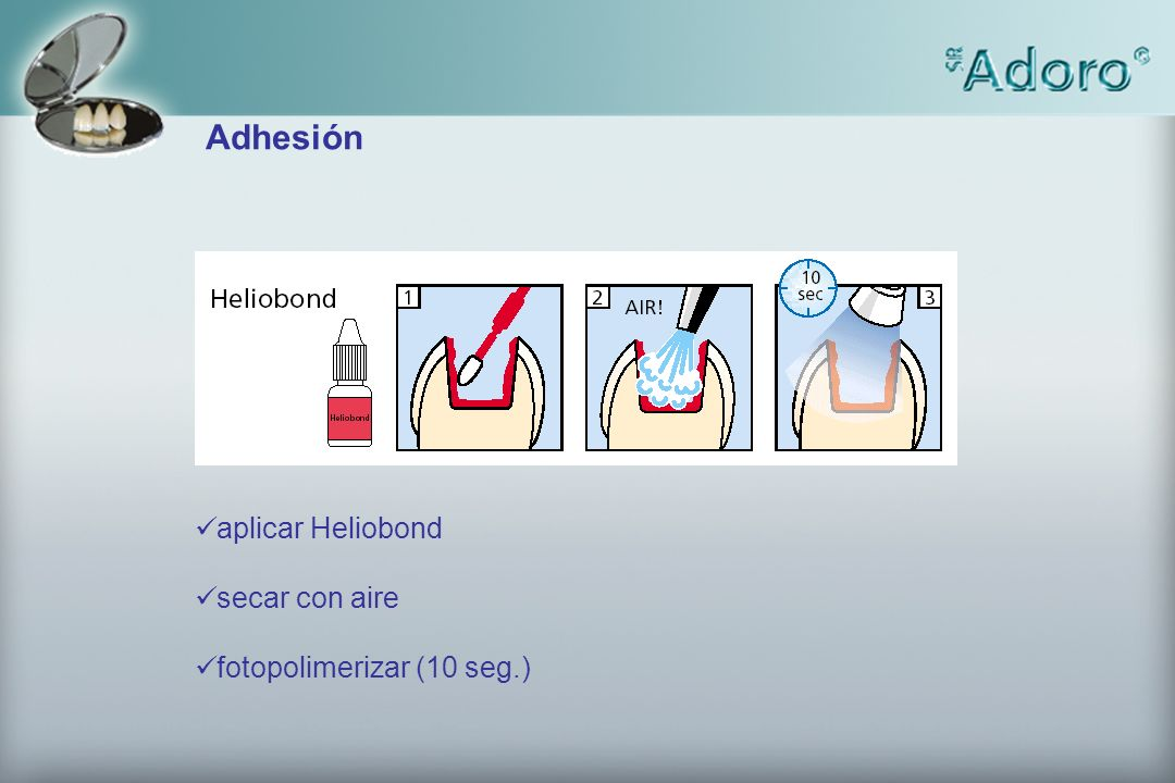 Adhesión aplicar Heliobond secar con aire fotopolimerizar (10 seg.)