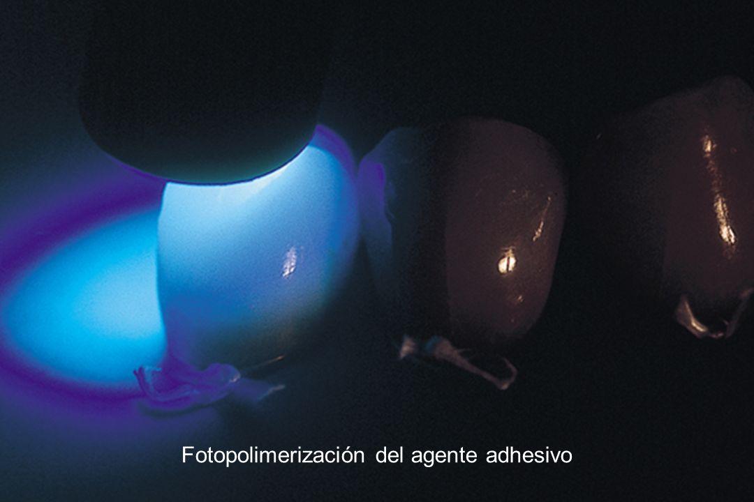 Fotopolimerización del agente adhesivo