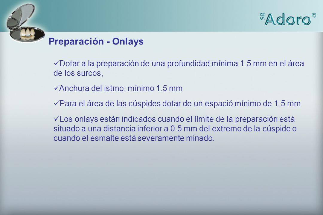 Preparación - Onlays Dotar a la preparación de una profundidad mínima 1.5 mm en el área de los surcos,