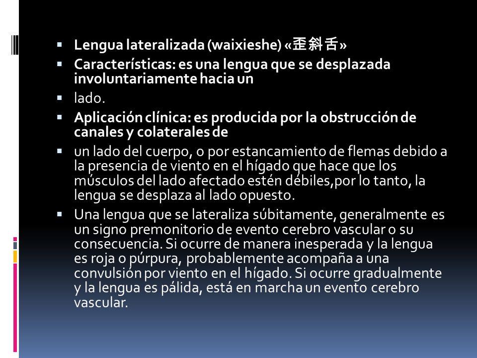 Lengua lateralizada (waixieshe) «歪斜舌»