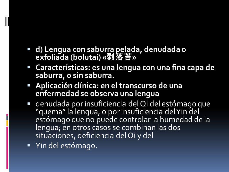 d) Lengua con saburra pelada, denudada o exfoliada (bolutai) «剥落苔»