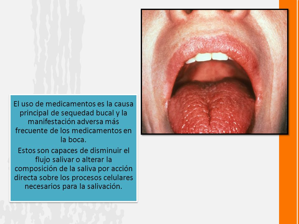 El uso de medicamentos es la causa principal de sequedad bucal y la manifestación adversa más frecuente de los medicamentos en la boca.