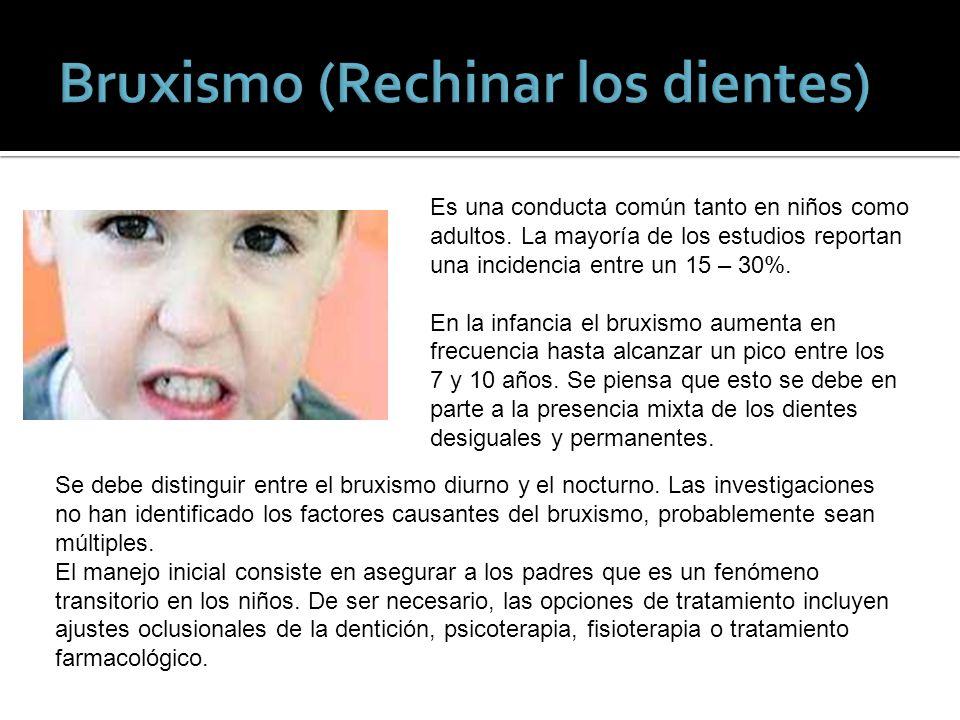 Bruxismo (Rechinar los dientes)
