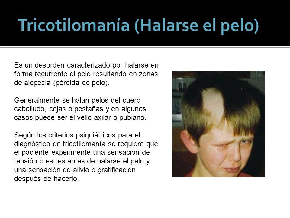 Tricotilomanía (Halarse el pelo)