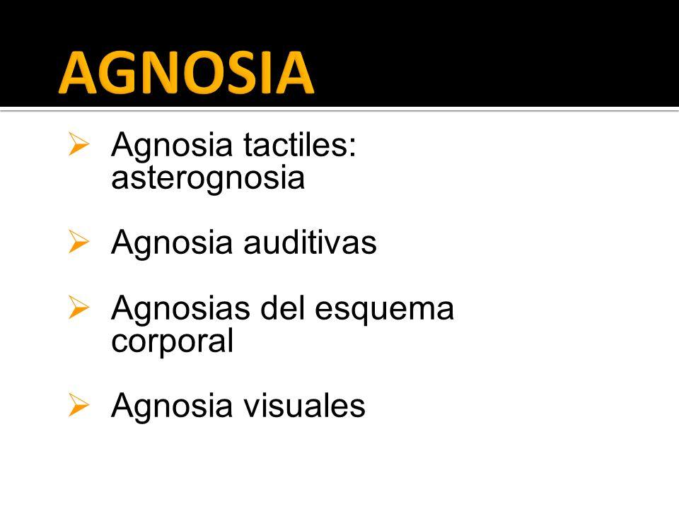 AGNOSIA Agnosia tactiles: asterognosia Agnosia auditivas