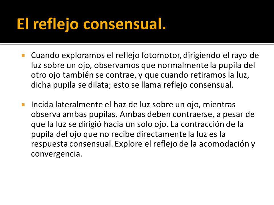El reflejo consensual.