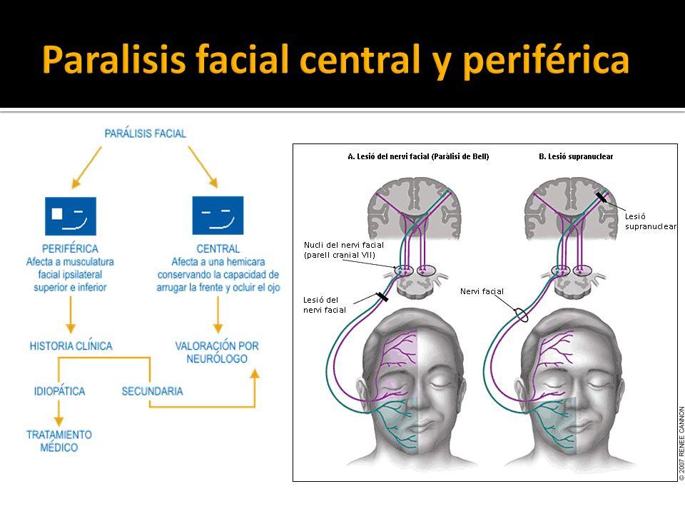 Paralisis facial central y periférica