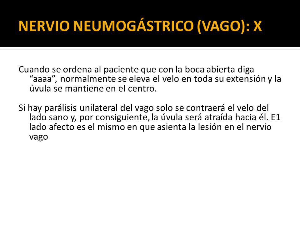 NERVIO NEUMOGÁSTRICO (VAGO): X