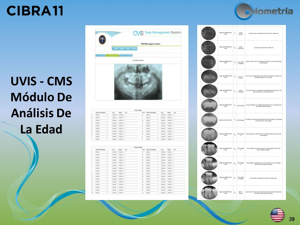 UVIS - CMS Módulo De Análisis De La Edad