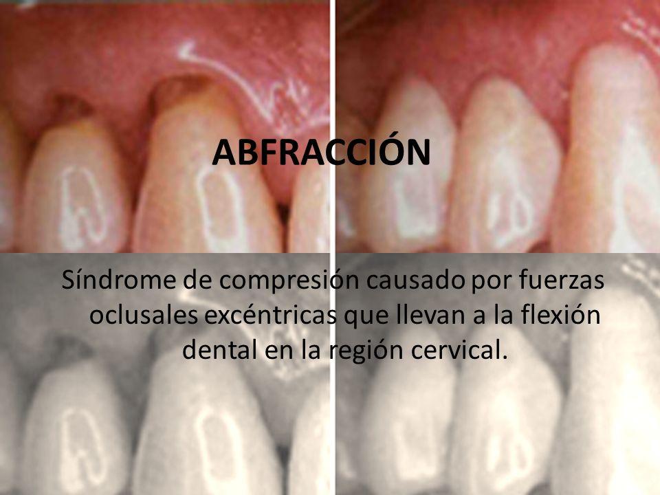 ABFRACCIÓN Síndrome de compresión causado por fuerzas oclusales excéntricas que llevan a la flexión dental en la región cervical.