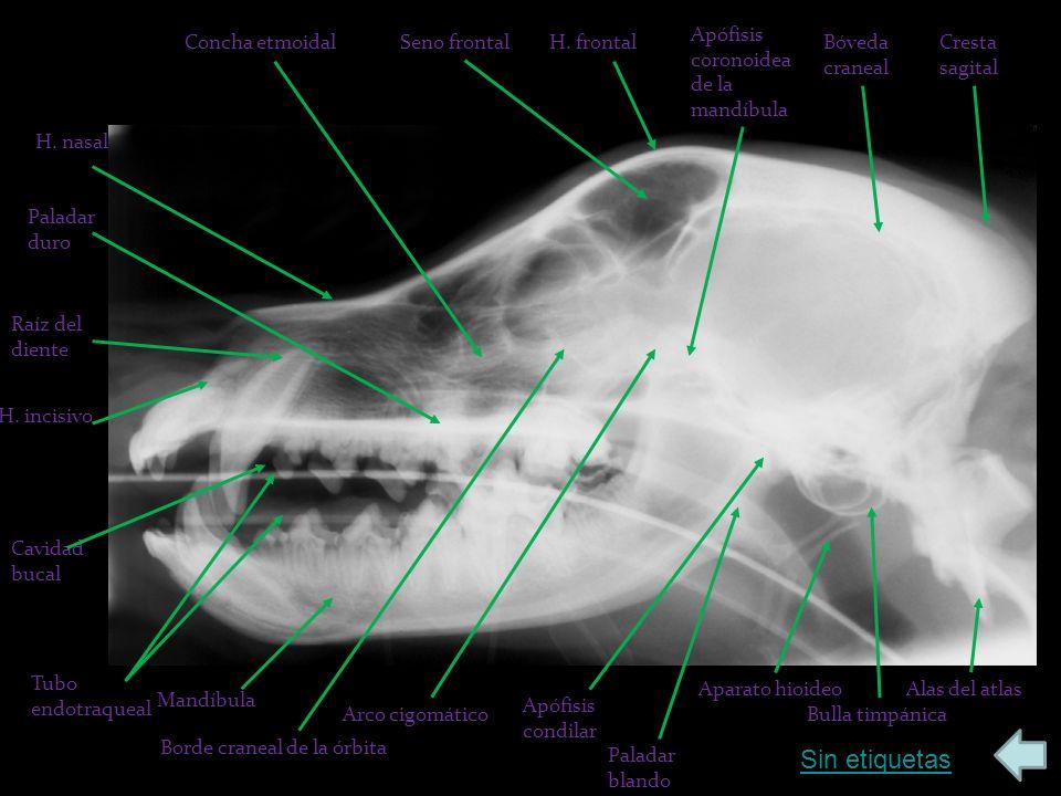 Sin etiquetas Apófisis coronoidea de la mandíbula Concha etmoidal