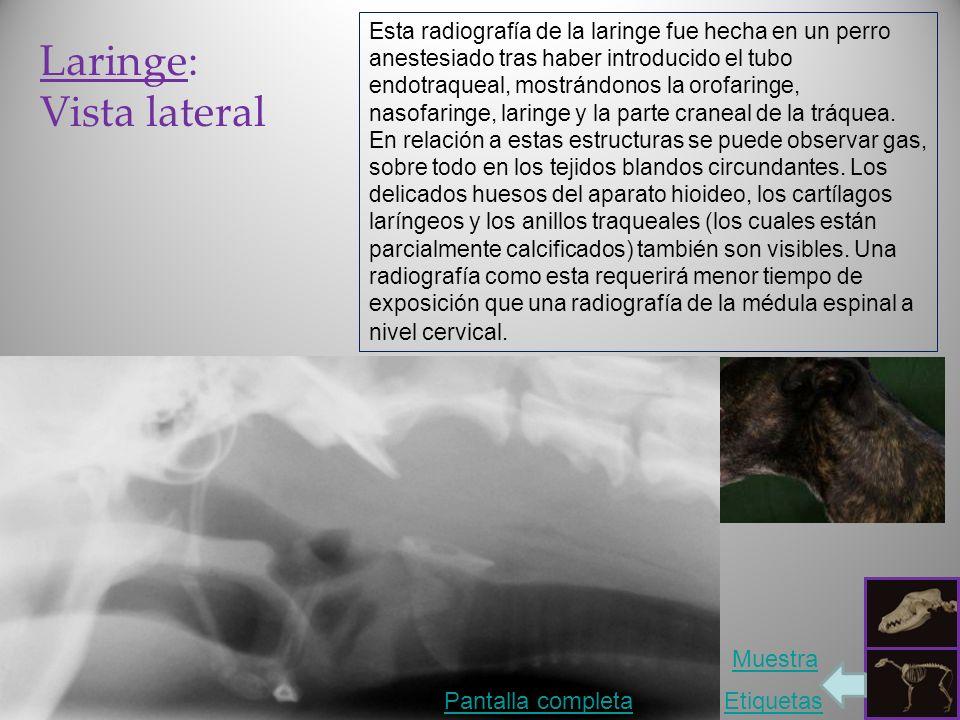 Laringe: Vista lateral Muestra Pantalla completa Etiquetas