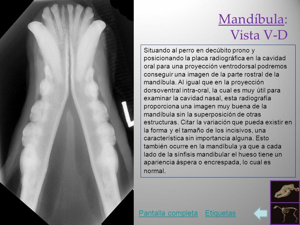 Mandíbula: Vista V-D Pantalla completa Etiquetas