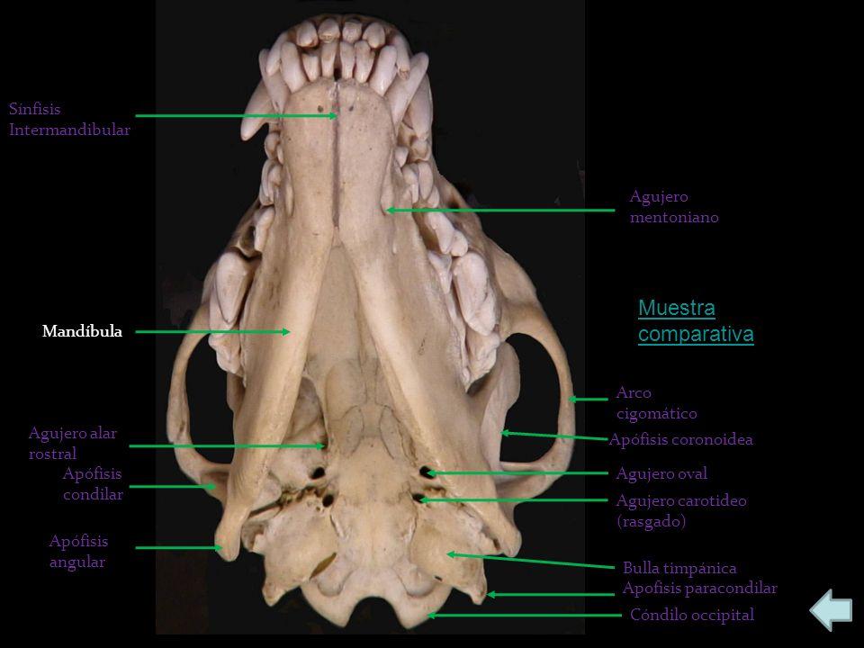 Muestra comparativa Sínfisis Intermandibular Agujero mentoniano