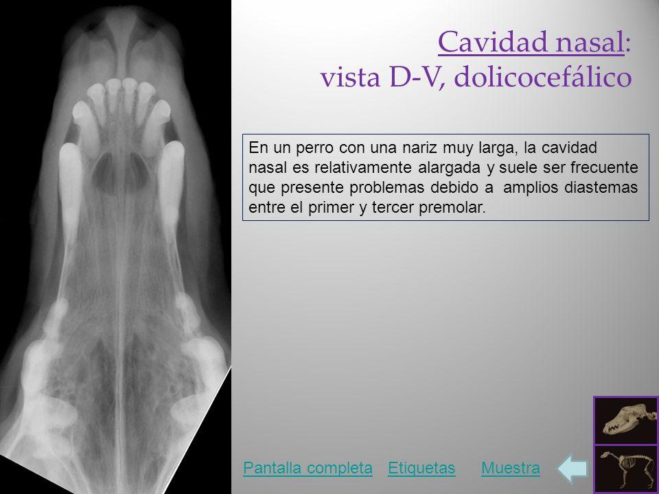 vista D-V, dolicocefálico