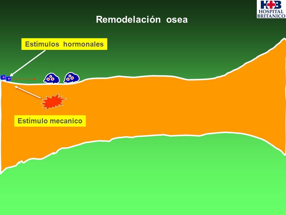 Remodelación osea Estímulos hormonales Estímulo mecanico