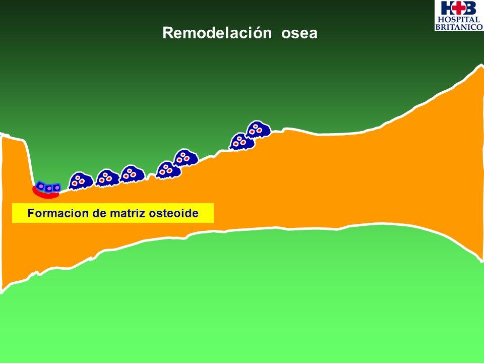 Formacion de matriz osteoide