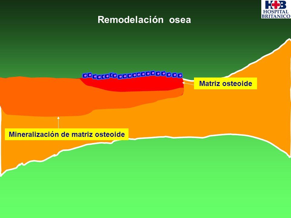 Mineralización de matriz osteoide