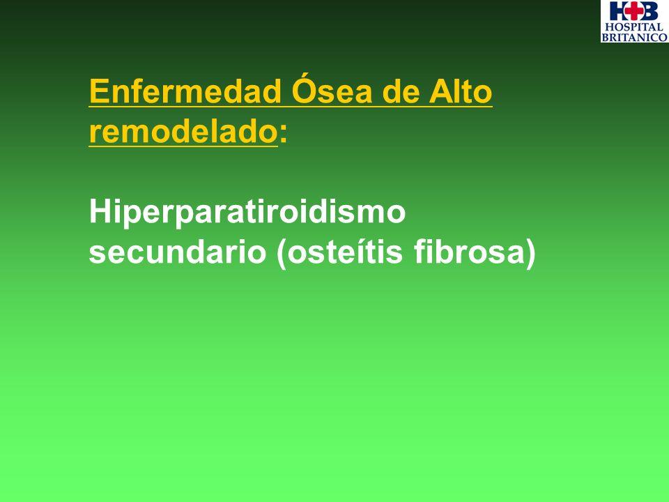 Enfermedad Ósea de Alto remodelado:
