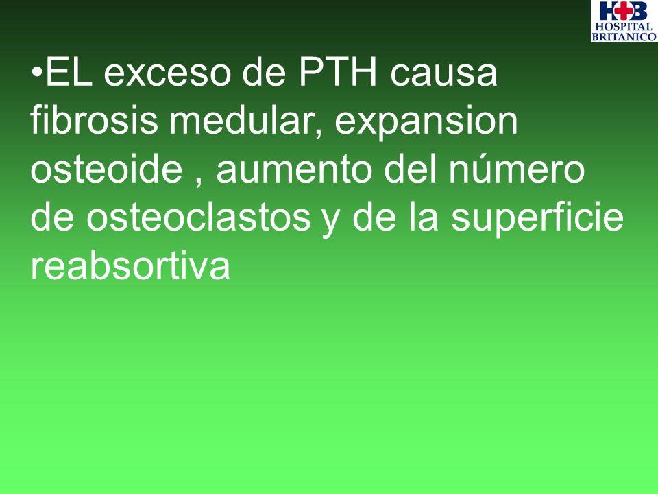 EL exceso de PTH causa fibrosis medular, expansion osteoide , aumento del número de osteoclastos y de la superficie reabsortiva
