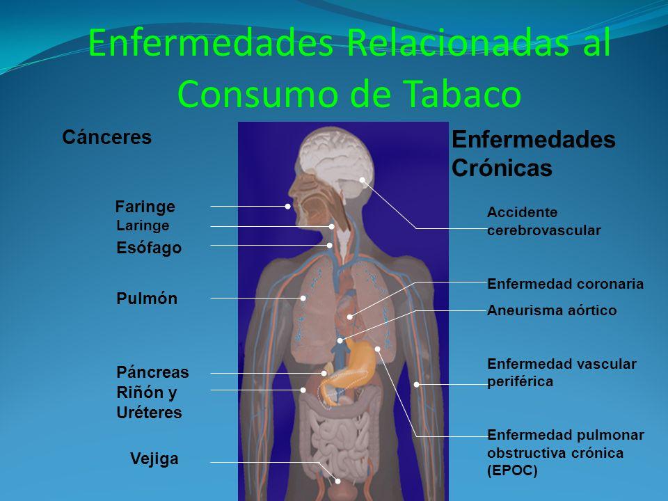 Enfermedades Relacionadas al Consumo de Tabaco