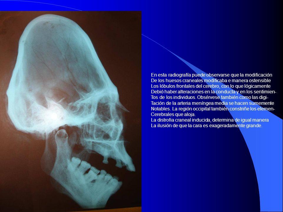 En esta radiografía puede observarse que la modificación