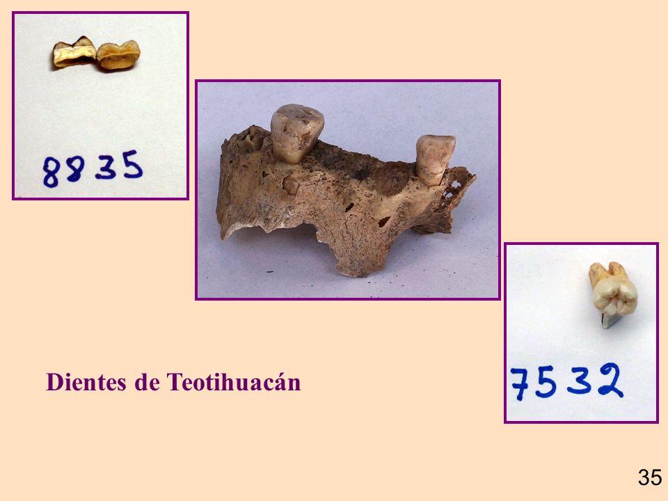 Dientes de Teotihuacán