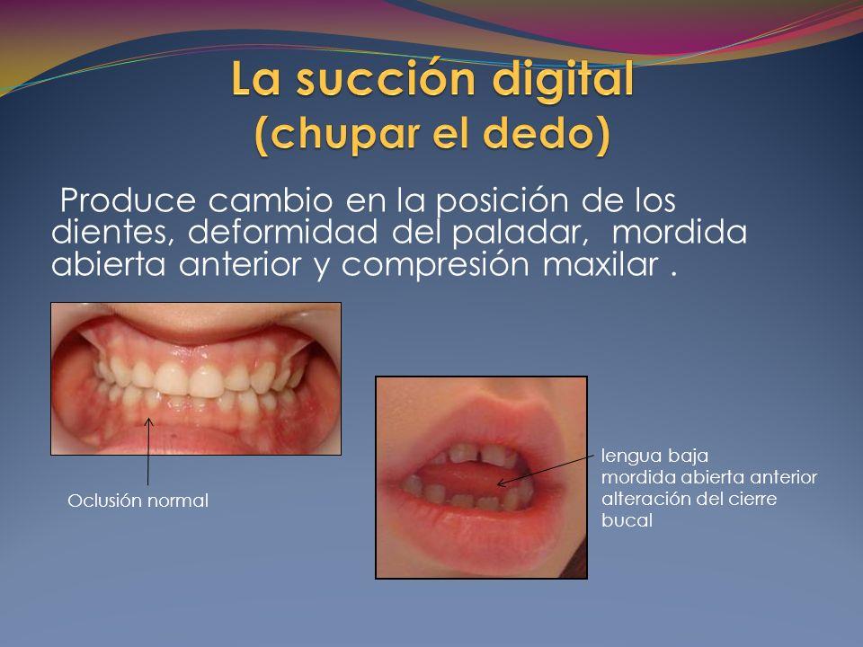 Produce cambio en la posición de los dientes, deformidad del paladar, mordida abierta anterior y compresión maxilar .